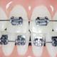 検成人全顎 歯列矯正