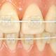 成人全顎 歯列矯正